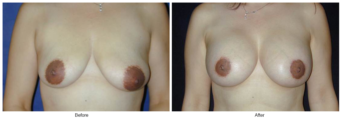 Orange County Cosmetic Surgery Clinique Before & After Periareolar Lift 2 - Front