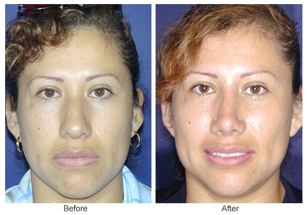 Orange County Cosmetic Surgery Clinique Before & After Rhinoplasty 10 - Front