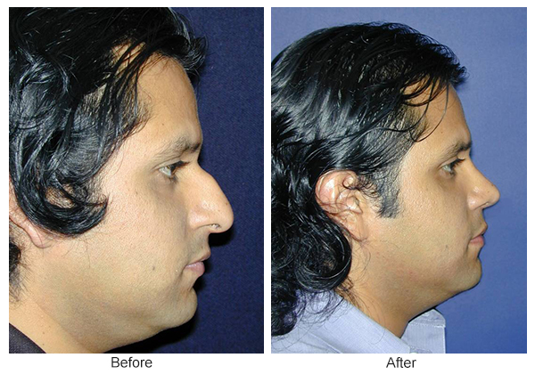 Orange County Cosmetic Surgery Clinique Before & After Rhinoplasty 11 - Right