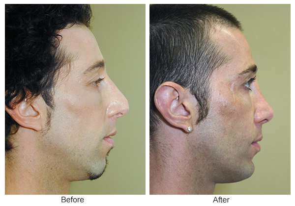 Orange County Cosmetic Surgery Clinique Before & After Rhinoplasty 12 - Right