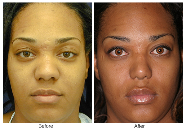 Orange County Cosmetic Surgery Clinique Before & After Rhinoplasty 15 - Front