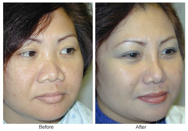 Orange County Cosmetic Surgery Clinique Before & After Rhinoplasty 16 - Right Quarter