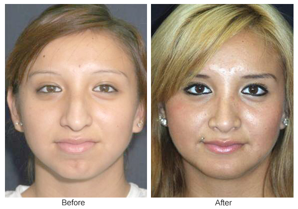 Orange County Cosmetic Surgery Clinique Before & After Rhinoplasty 3 - Front