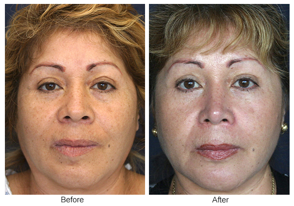 Orange County Cosmetic Surgery Clinique Before & After Rhinoplasty 5 - Front