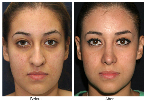 Orange County Cosmetic Surgery Clinique Before & After Rhinoplasty 7 - Front