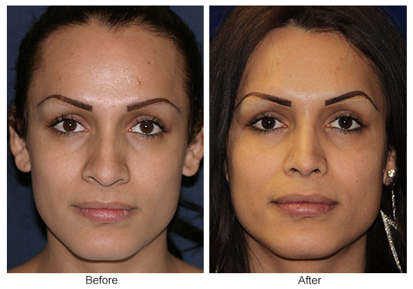 Orange County Cosmetic Surgery Clinique Before & After Rhinoplasty 8 - Front