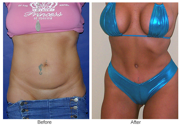 Orange County Cosmetic Surgery Clinique Before & After Tummy Tuck 1 - Front