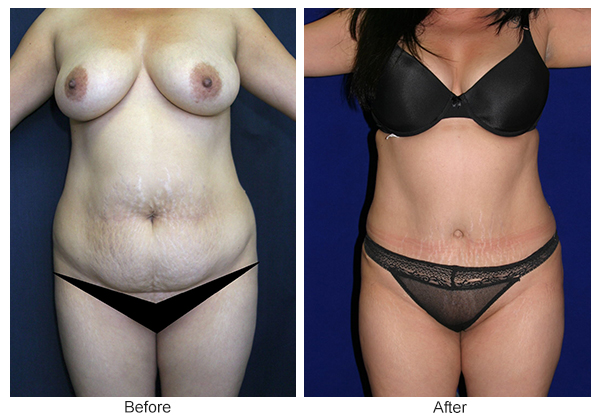 Orange County Cosmetic Surgery Clinique Before & After Tummy Tuck 11 - Front