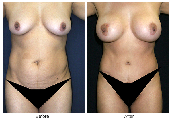 Orange County Cosmetic Surgery Clinique Before & After Tummy Tuck 2 - Front