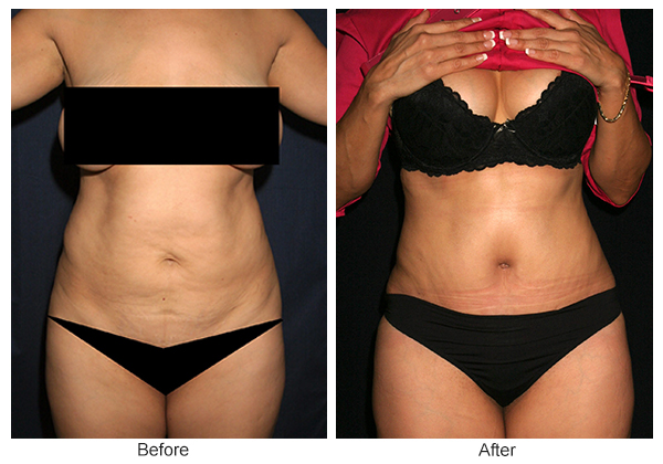 Orange County Cosmetic Surgery Clinique Before & After Tummy Tuck 4 - Front