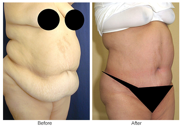 Orange County Cosmetic Surgery Clinique Before & After Tummy Tuck 5 - Right Quarter