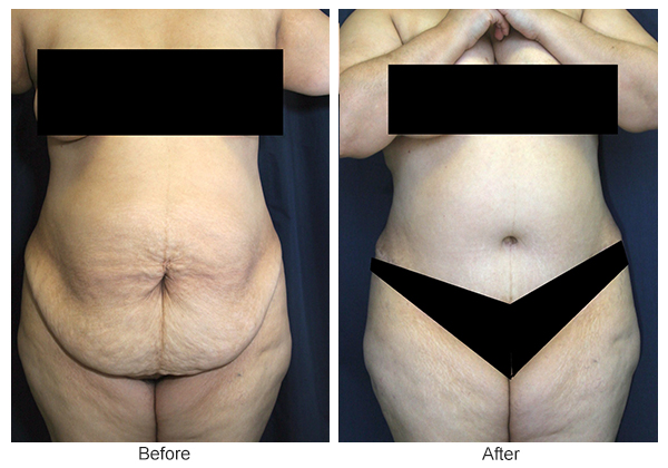 Orange County Cosmetic Surgery Clinique Before & After Tummy Tuck 7 - Front