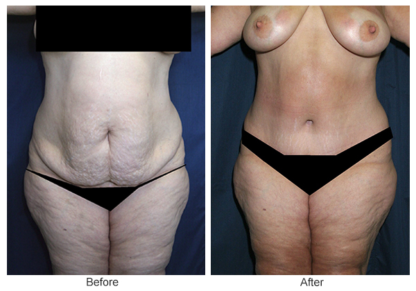 Orange County Cosmetic Surgery Clinique Before & After Tummy Tuck 8 - Front