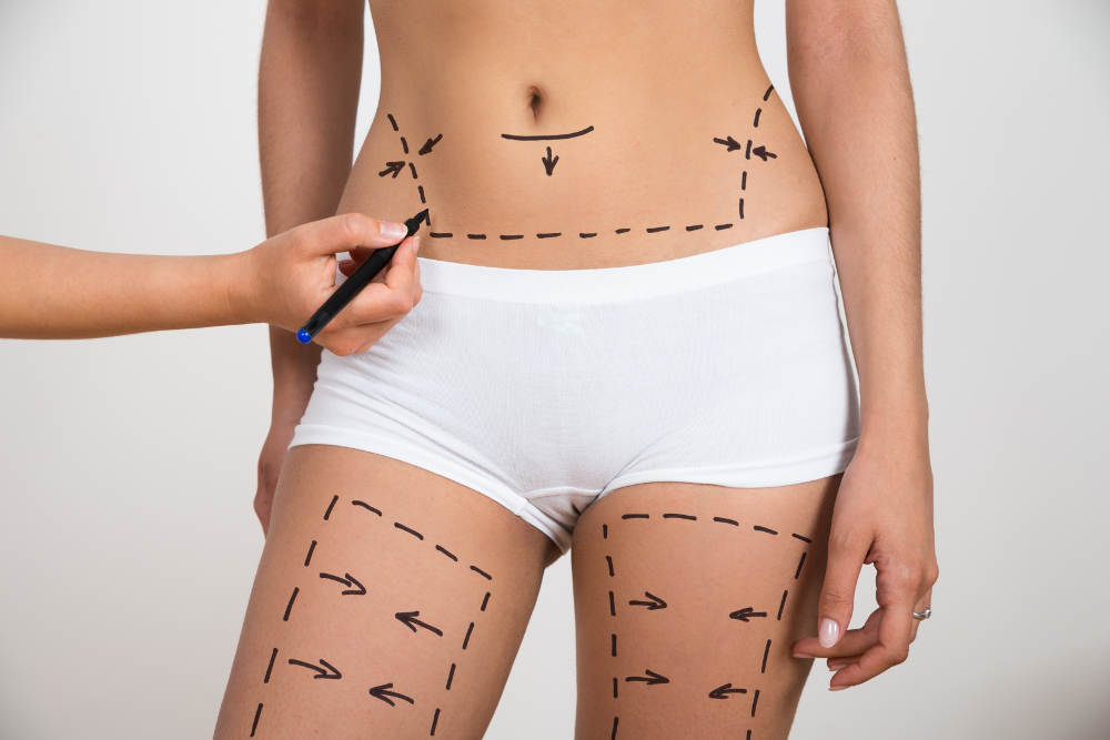Benefits of Outpatient Cosmetic Surgeries | Orange County Cosmetic Surgery