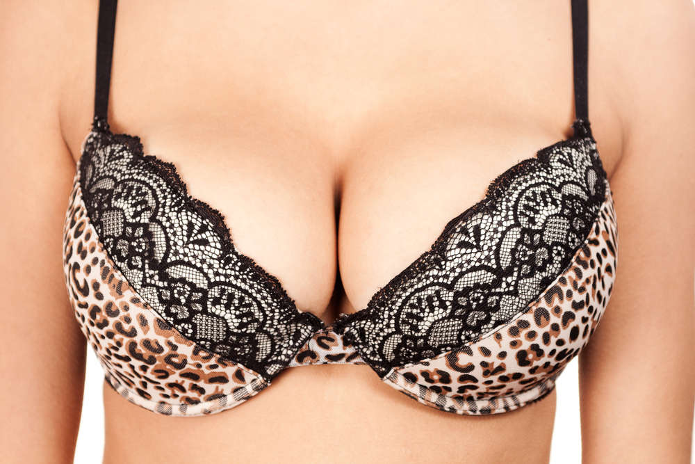Dr. Tavoussi - Wearing a Bra after Breast Augmentation | Newport Beach Cosmetic Procedures