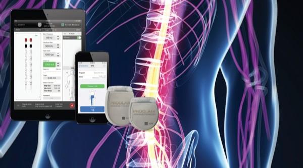 Study: Burst Stimulation Decreased Chronic Pain Symptoms at 1 Year
