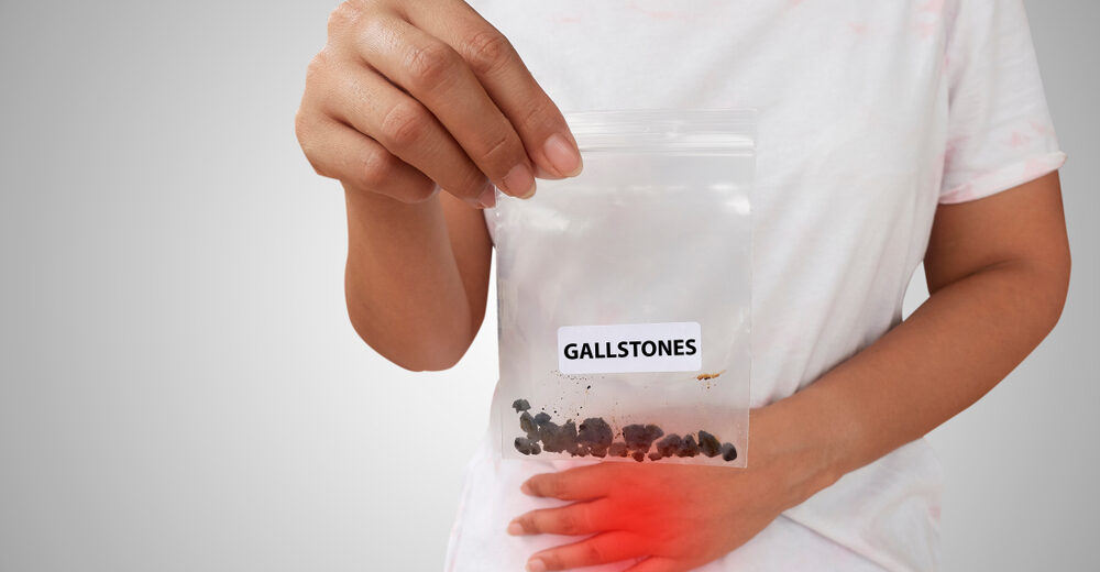 Gallstones Maryland