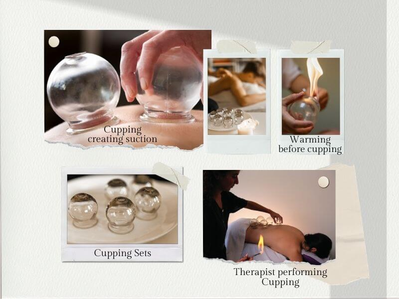 Cupping Therapy illustrated with several images