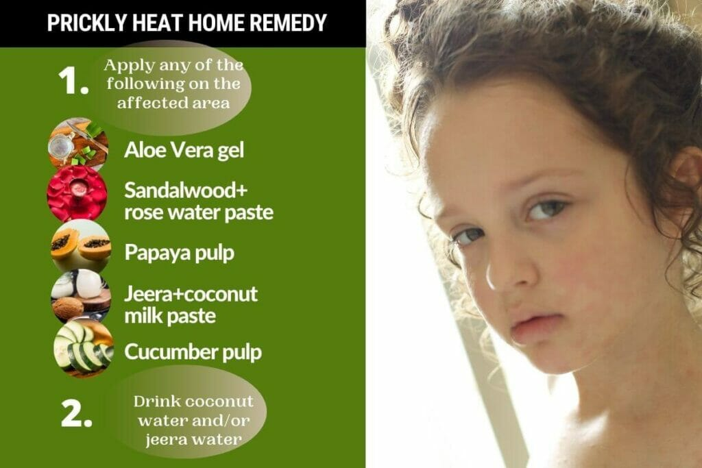 Infographic-Prickly heat rashes home remedy