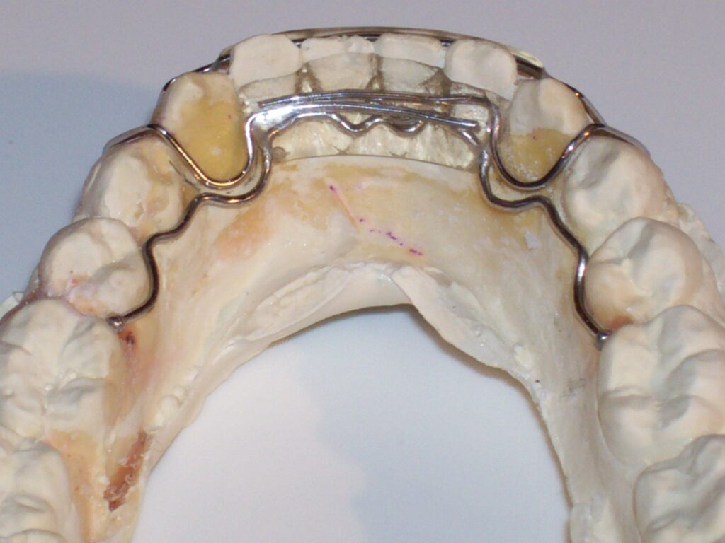 3-3 Clip-on Spring retainer, shown with optional wire extensions