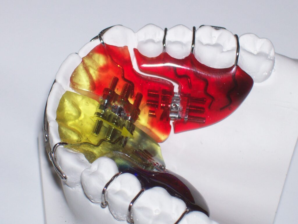 Sagittal removable dental expander