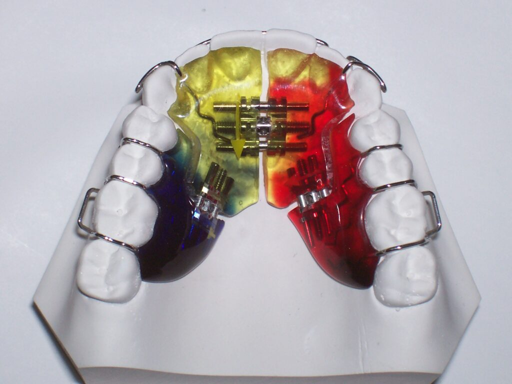 3-way sagittal, shown with rickets labial bow Adams & ball clasps