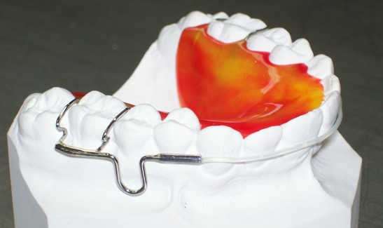 Circumferential retainer soldered to adams claps.  (Shown with invisible labial bow)