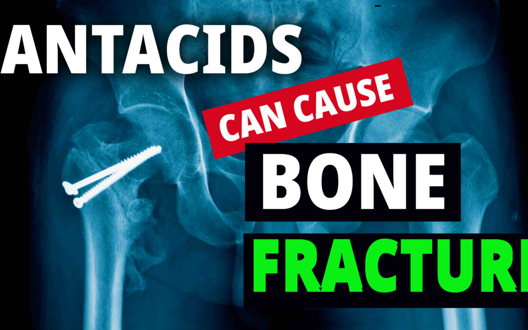 WARNING: Your Heartburn Medicine May Be Increasing Chances Of HIP FRACTURE !