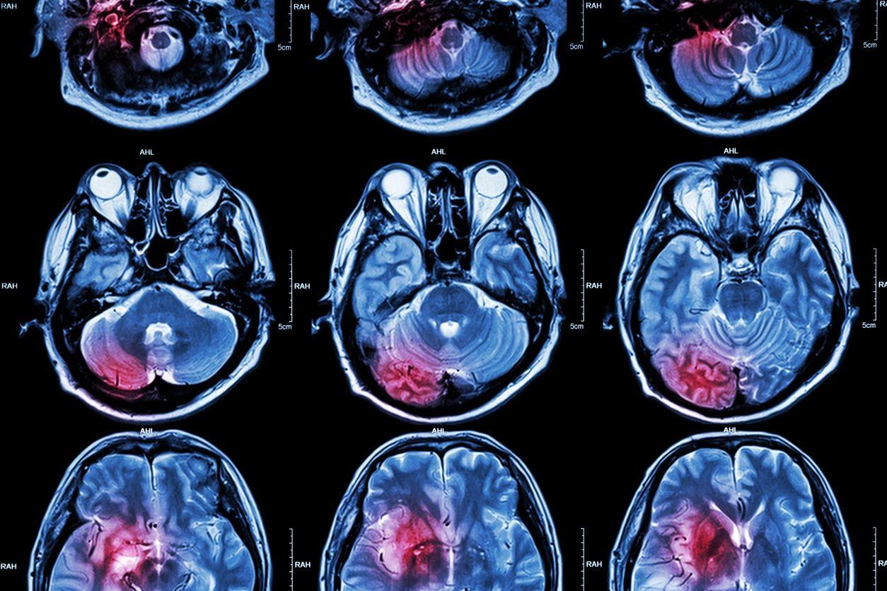 Portland Neurosurgery