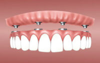 Dental Technician Questions and Answers