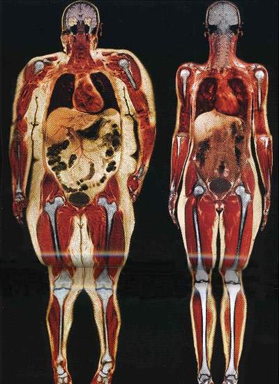 Body scans comparing a thin and obese woman.