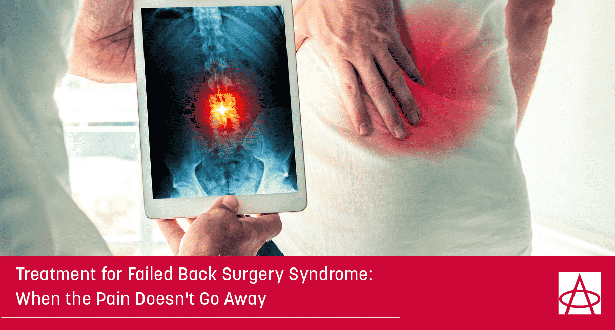 Treatment for Failed Back Surgery Syndrome: When the Pain Doesn't Go Away