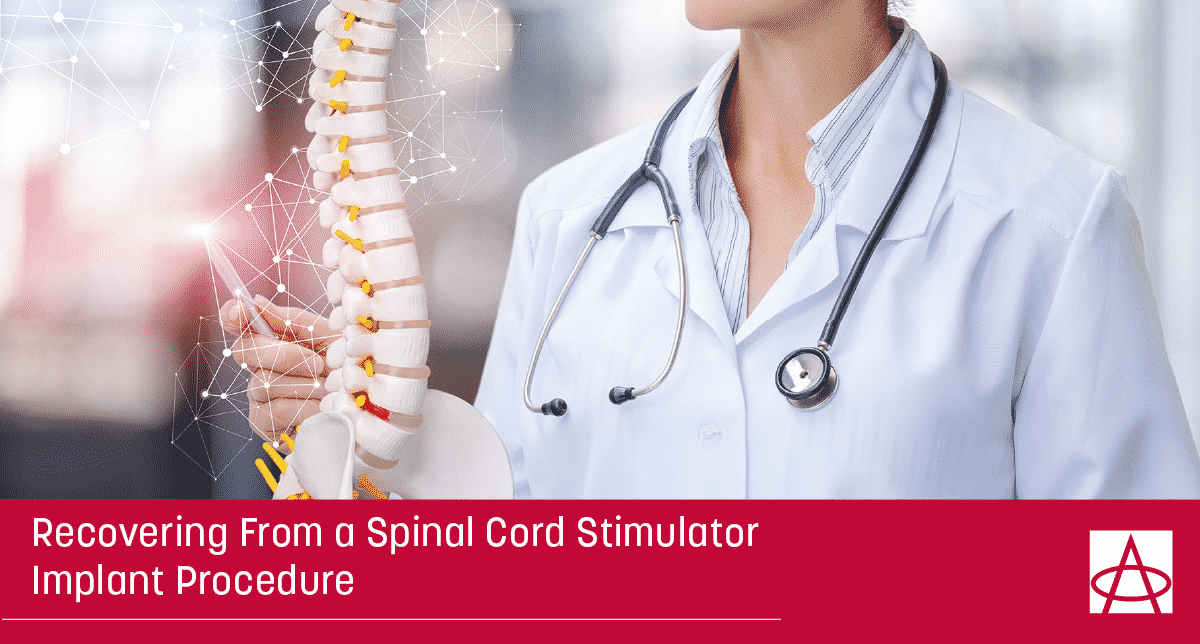 Recovering From a Spinal Cord Stimulator Implant Procedure
