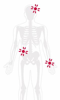 Fibromyalgia Pain Treatment