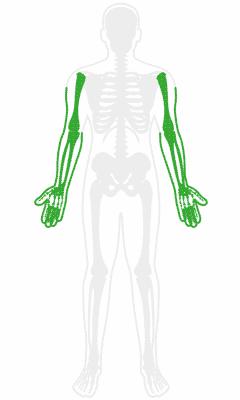Orthopedic Arm Pain Treatment
