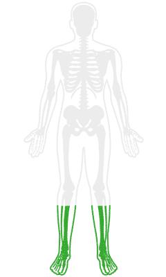 Orthopedic Foot