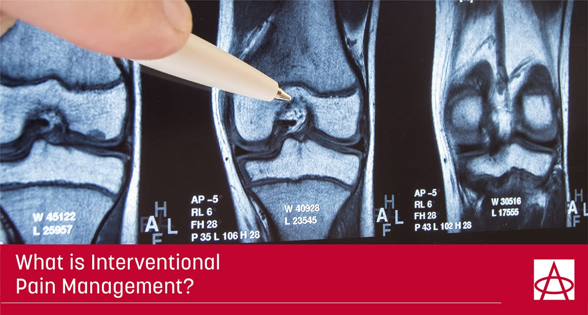 What is Interventional Pain Management?