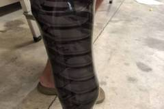 prosthetic-leg-custom-wrap