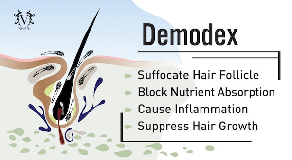 hair loss demodex