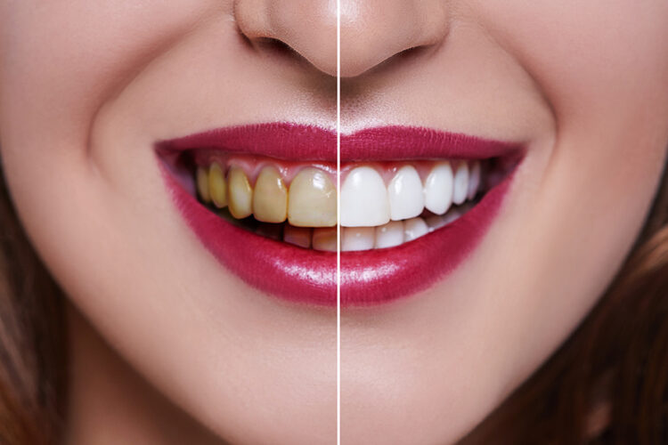 Teeth Whitening Alison B Lubyansky Dds