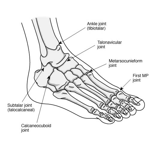 Arthritis of the Foot and Ankle
