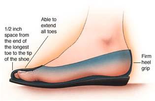 bunion in shoe side view