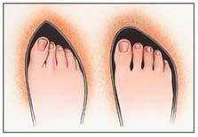 bunion in shoe
