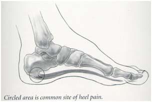 heal pain