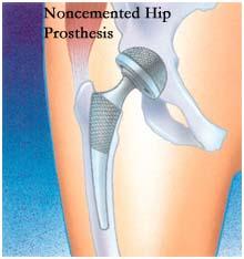 non-cemented hip