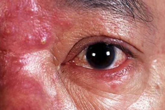 Ocular-rosacea-can-cause-pimple-like-bumps-around-the-eye