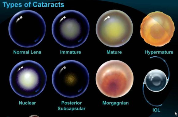 types-of-cateracts