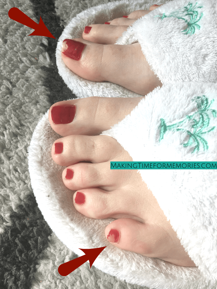 foot masks took off nail polish from big toe and little toe