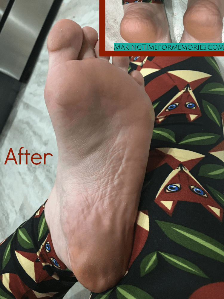 feet 12 days after applying a foot mask