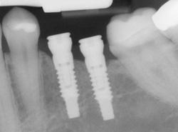 implants-x-ray